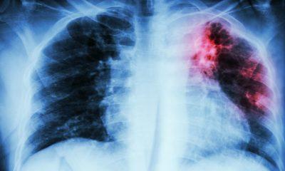 Por la pandemia se retrasa el objetivo de erradicar la tuberculosis mundialmente