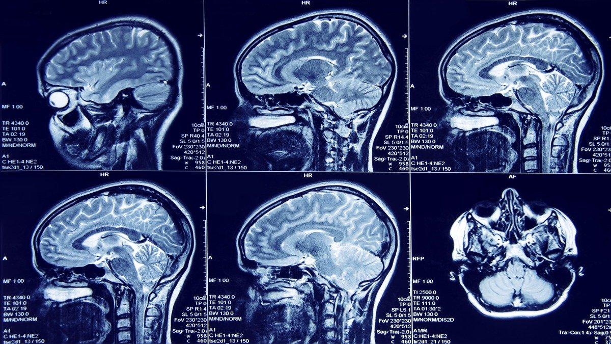 Vinculan actividad en zona del cerebro al desarrollo de la ansiedad y la depresión