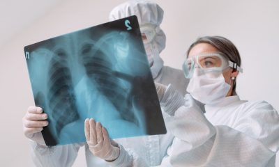 proponen modelo computacional tuberculosis