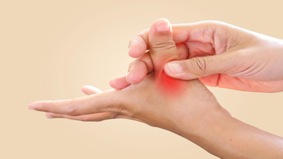 Aprueban en Europa guselkumab para la artritis psoriásica activa