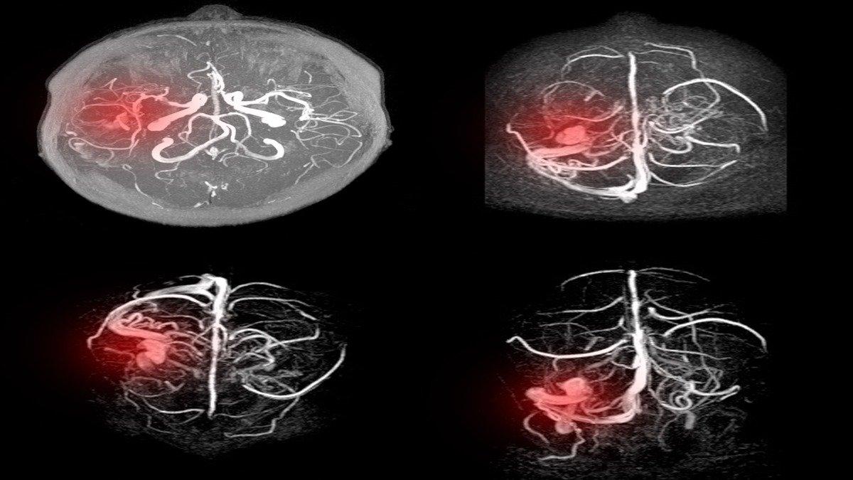 Inteligencia Artificial ayudaría a detectar aneurismas cerebrales
