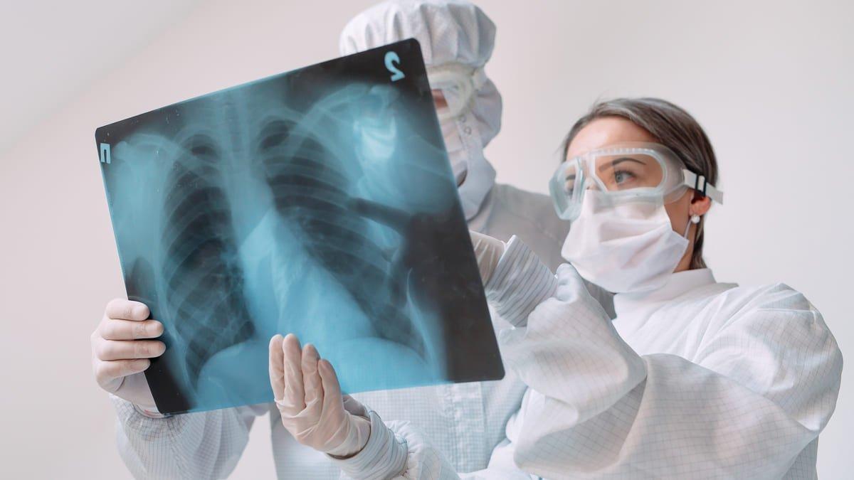 Mas de 900 personas riesgo tuberculosis Peru