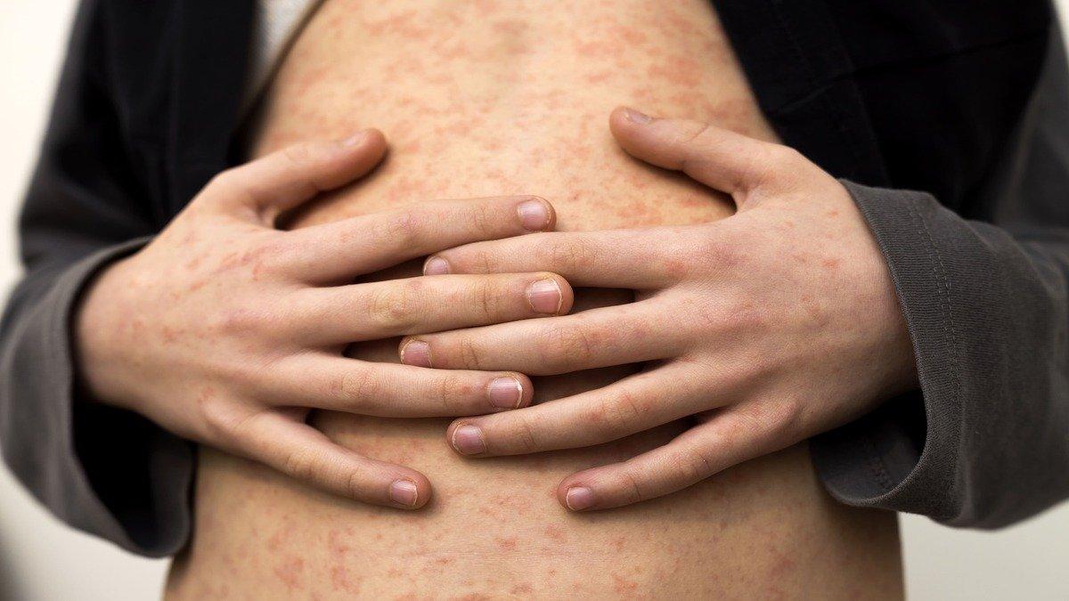 Sin vacunación el sarampión volverá a niveles de contagio de 1996