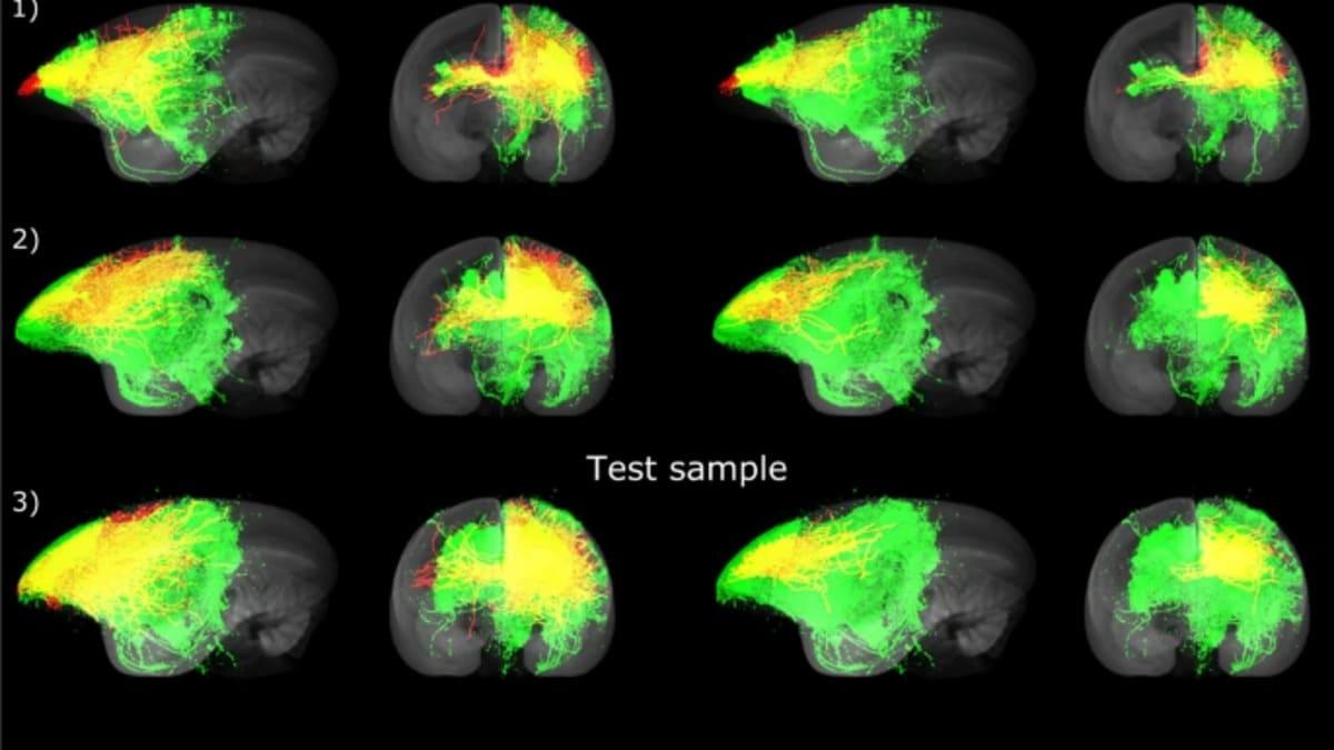 Inteligencia artificial mapeo cerebral
