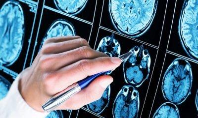 Hallan mutaciones asociadas al inicio precoz de la demencia