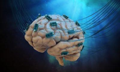 Neuromodulación dirigida aliviaría síntomas de depresión grave