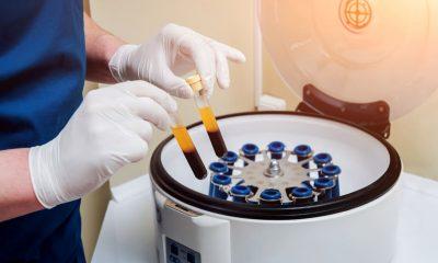 Tratamiento con plasma