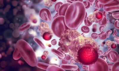 ¿Qué pasa con los cánceres raros en el mundo