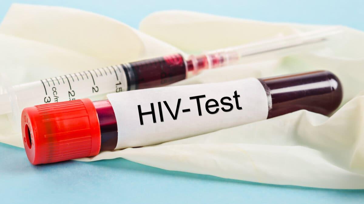 Estos son los restos y apuestas en salud del VIH Sida en Colombia