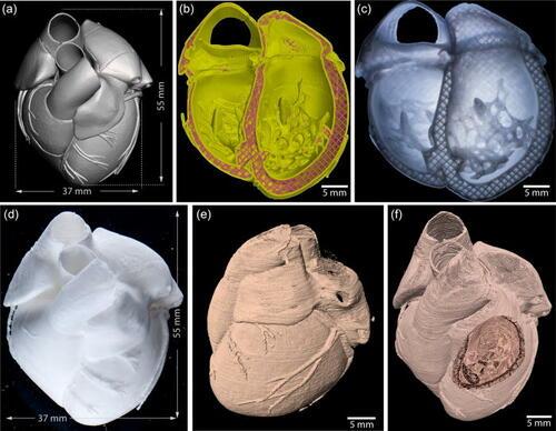 FRESH impresion 3D trasplante de organos