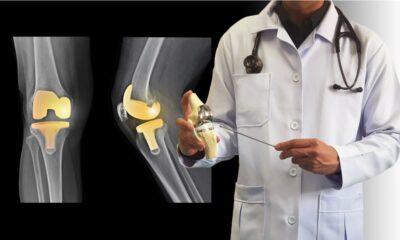 Medicamento para la depresión muestra efectividad para tratar la artrosis