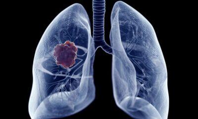 cancer de pulmón Nivolumab más ipilimumab
