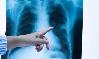 Diagnóstico de tuberculosis disminuyó entre 15% y 20% en Latinoamérica