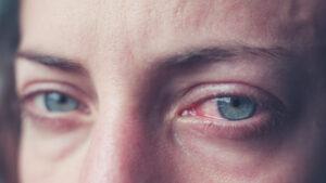 Estudio sugiere que el consumo de cannabis afecta la visión