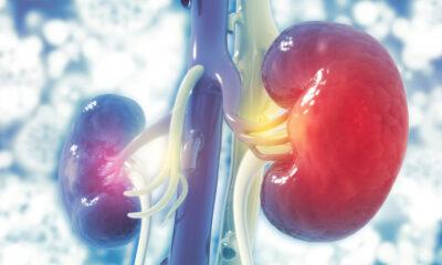 Hallan biomarcador rechazo trasplante riñon