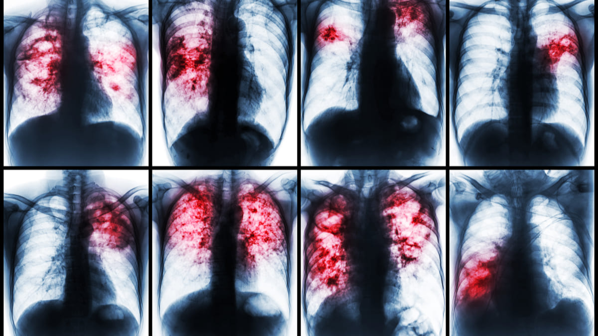 Tuberculosis la pandemia redujo el número de atenciones por la infección