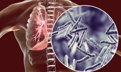 comprueban eficacia medicamento antituberculosis