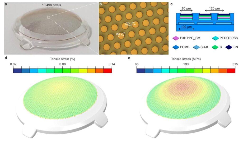implante de retina visiob
