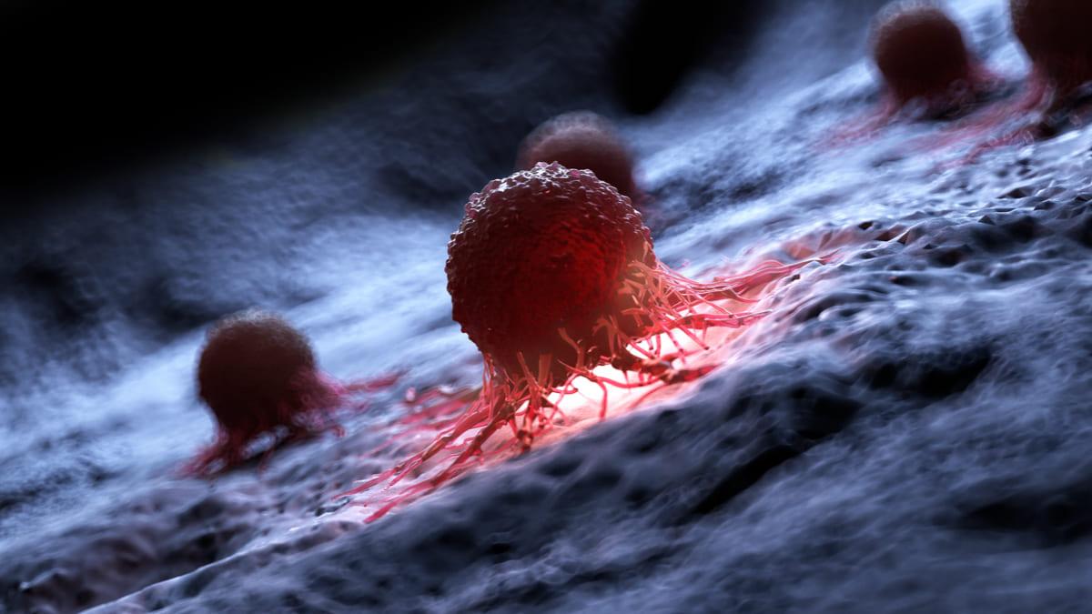 Analizan medicamento que podría detener el crecimiento de melanomas