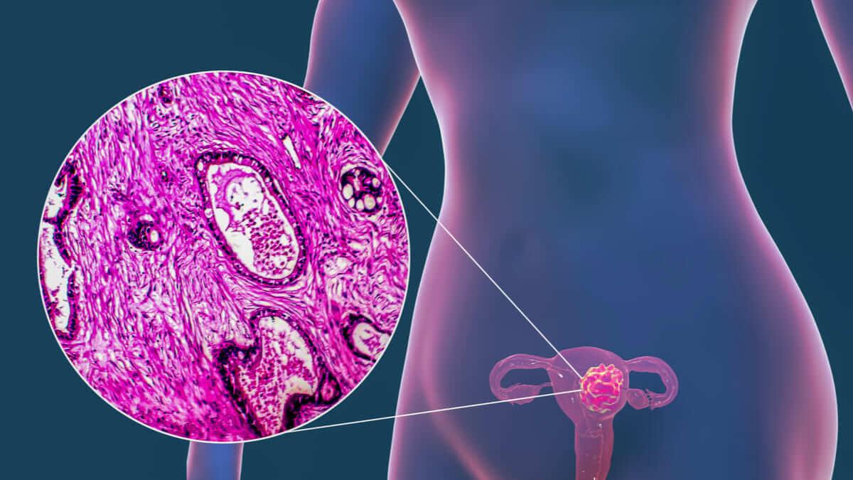 FDA aprueba nueva inmunoterapia para carcinoma endometrial