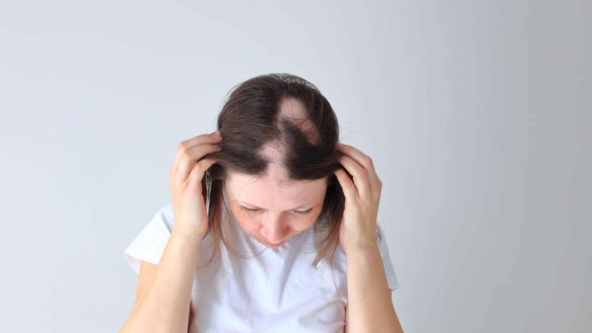 Medicamento de Eli Lilly para alopecia areata aprueba ensayos de fase III