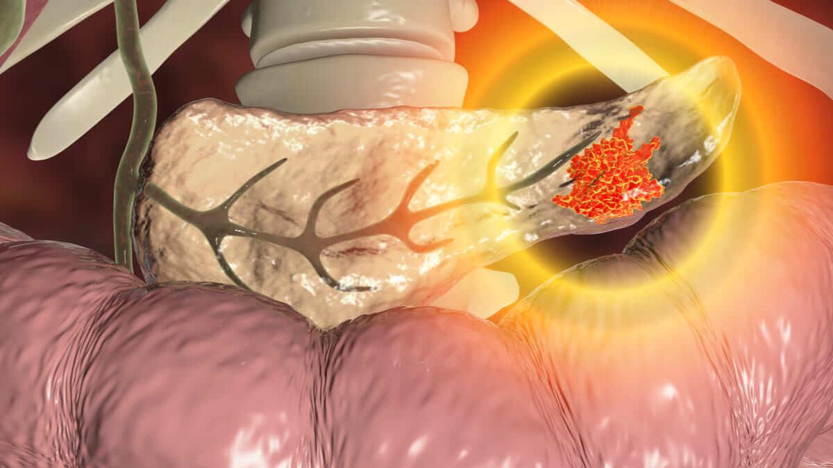 Medicamento inmunoestimulante muestra buenos resultados en cáncer de páncreas fase inicial
