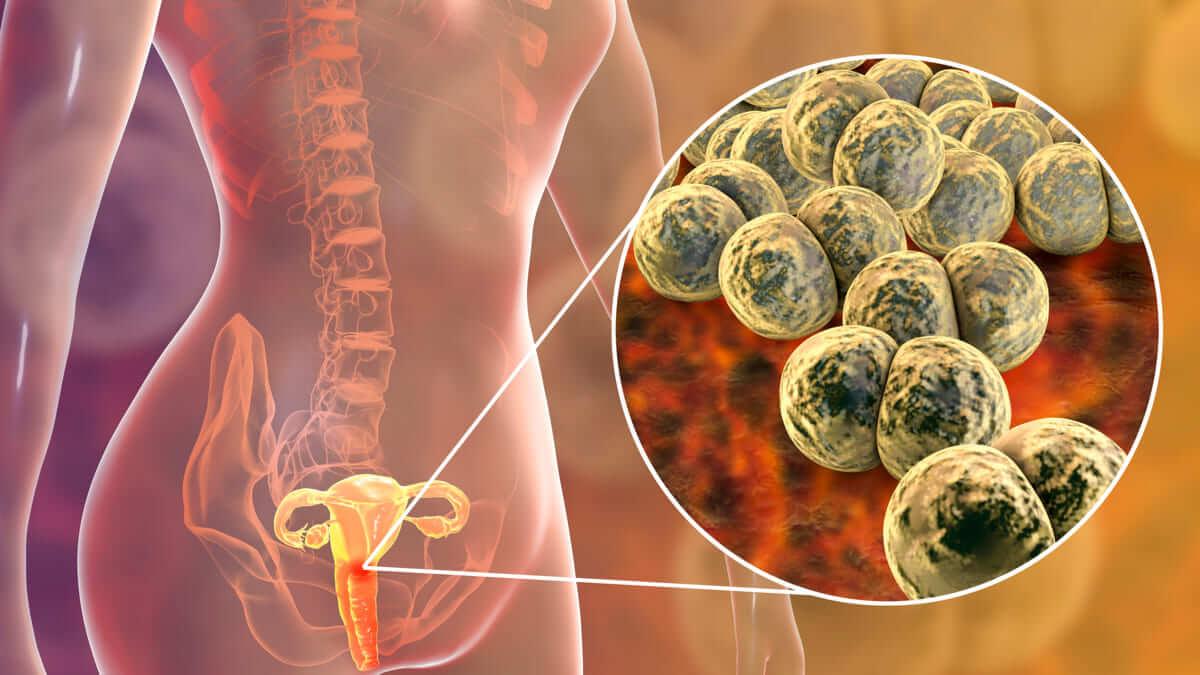 Crean dispositivo para diagnosticar la gonorrea en menos de 15 minutos
