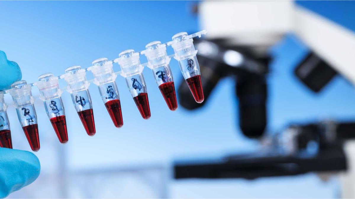 muerte subita predecir examen genetico