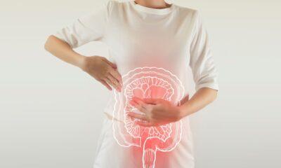 BIGDATA Síndrome de Colon Irritable