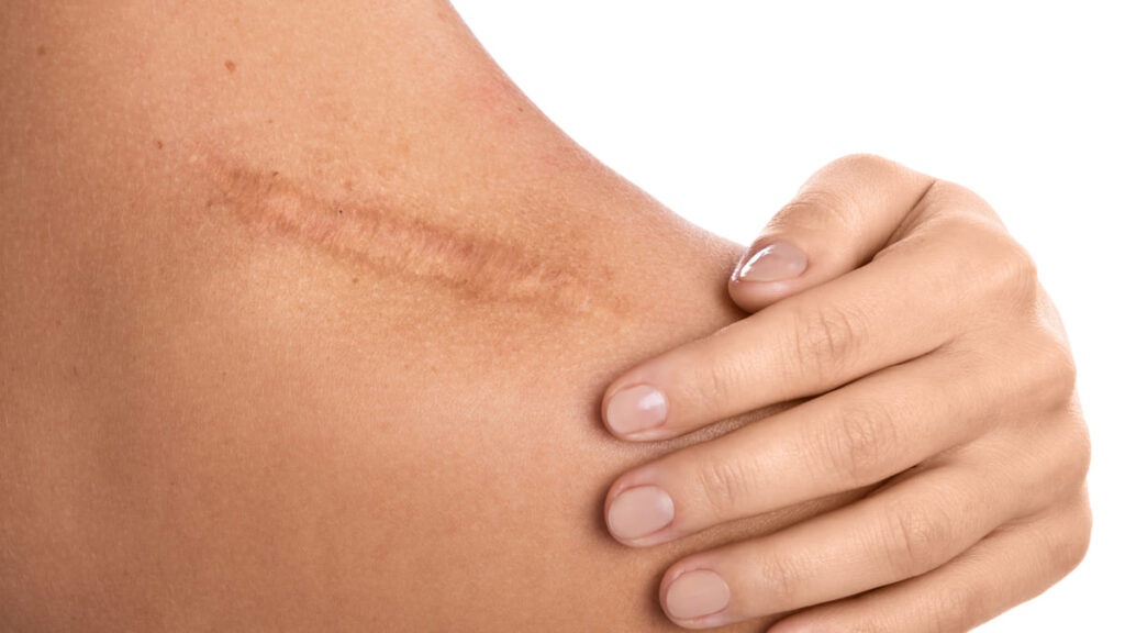 Científicos están desarrollando un método para curar heridas sin dejar cicatrices
