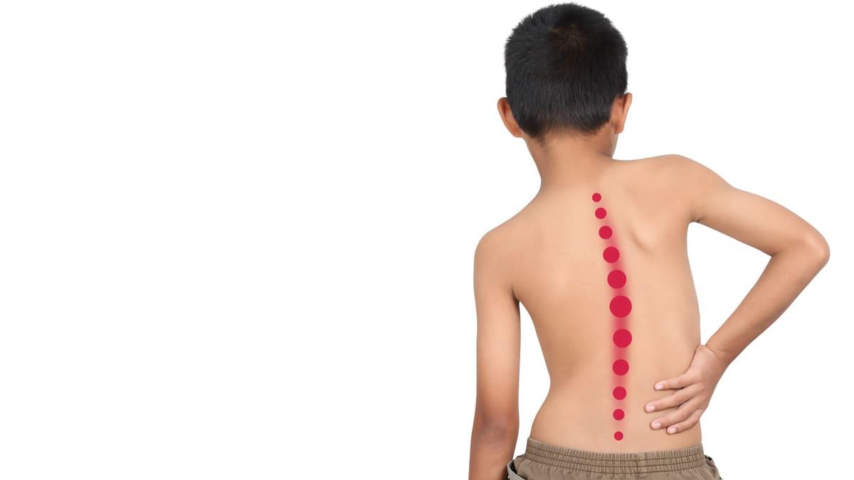 Crean en México un APP que detecta la escoliosis en niños de forma temprana