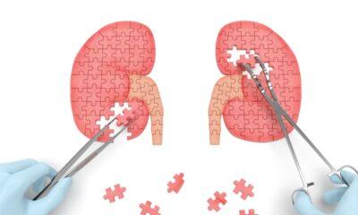 El síndrome nefrótico provoca un alto riesgo de insuficiencia renal