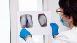 La OMS actualizó la lista de países con más alta carga de tuberculosis