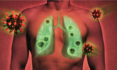 Metformina podría disminuir inflamación pulmonar por Covid-19