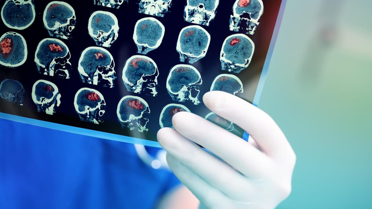 enfermedad cerebrovascular priorizada PNV