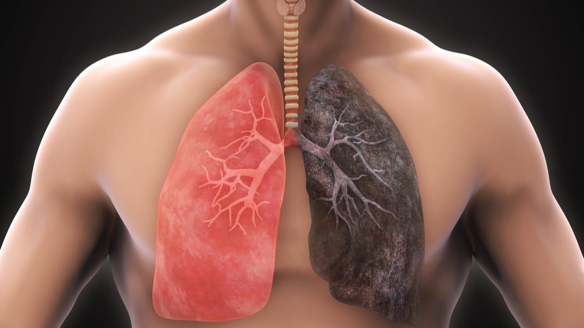 Dejar de fumar tras un diagnóstico de cáncer de pulmón ralentiza la progresión de la enfermedad