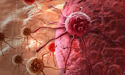 Primer modelo computacional celula cancerosa