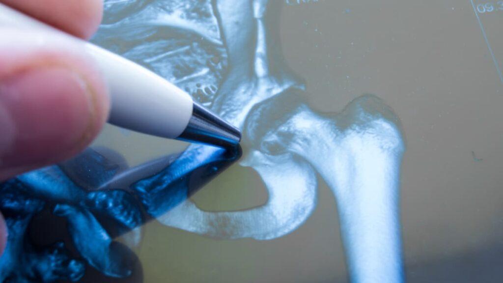 Artrosis identifican nuevos factores de riesgo genético