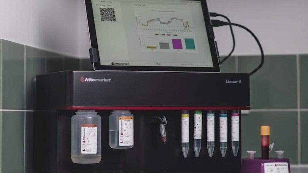 Test rapido detecta origen anticuerpos covid (1)
