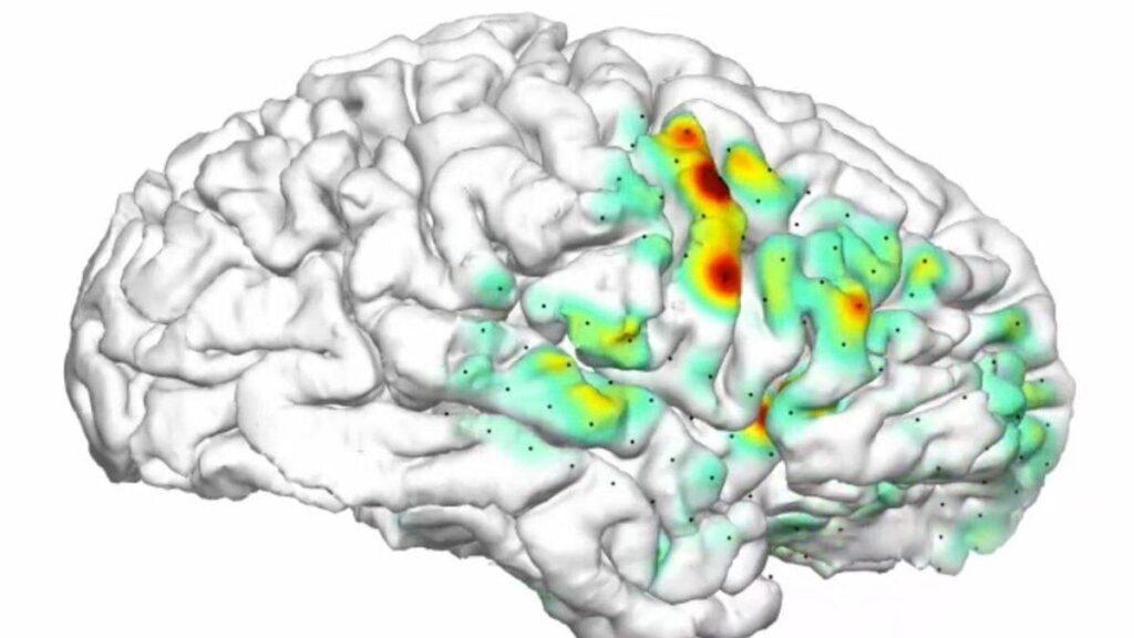mapa de calor cerebral convulsiones. Crédito UCSF