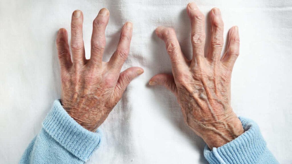 Científicos están desarrollando una vacuna experimental para la artritis reumatoide