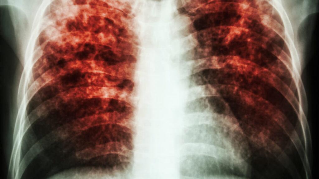 aumentan muertes por tuberculosis por primera vez en 10 años